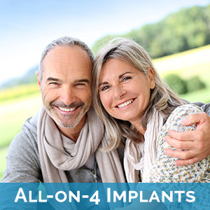 All-on-4 Dental Implants in Union