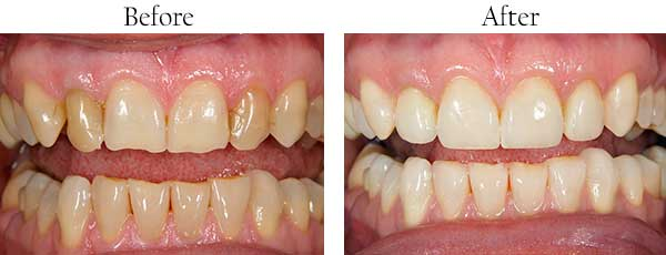 Springfield Township Before and After Teeth Whitening
