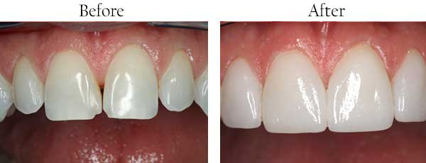 Roselle Park dental images